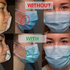 Surgical mask retractor / Ecarteur de masque chirurgical COVID19